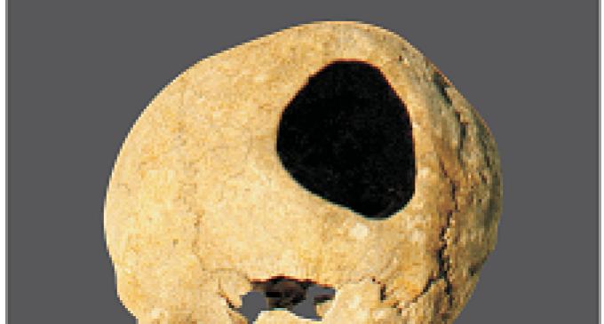 Partanna: il Cranio Trapanato torna nel nostro comune